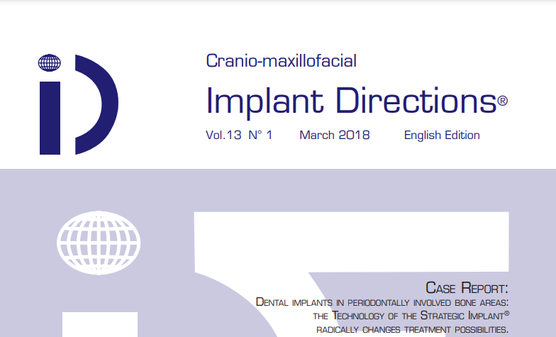 Implant Directions